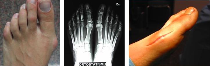 Alluce-valgo-osteotomia-distale-dott-Gianluca-Falcone-Roma