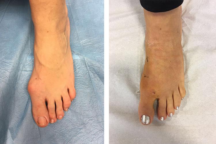 Chirurgia-percutanea-mini-invasiva-alluce-valgo_5_dott-Gianluca-Falcone-Roma