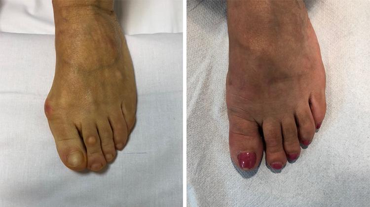 Chirurgia-percutanea-mini-invasiva-alluce-valgo_6_dott-Gianluca-Falcone-Roma