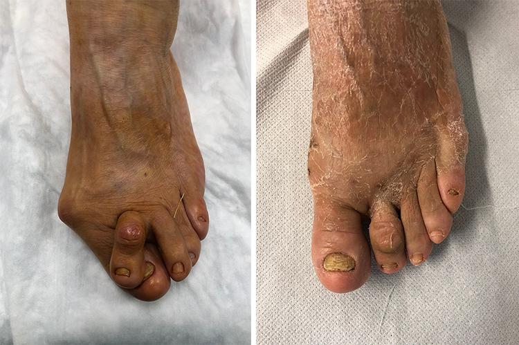 Chirurgia-percutanea-mini-invasiva-alluce-valgo_7a_dott-Gianluca-Falcone-Roma