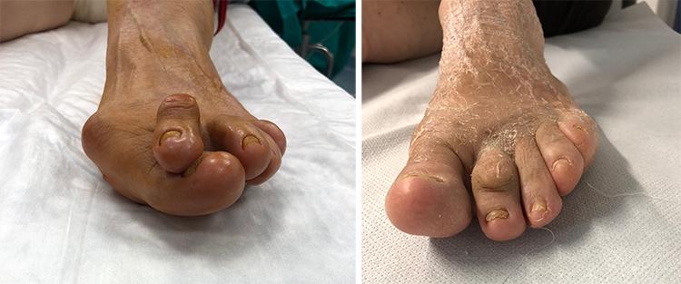 Chirurgia-percutanea-mini-invasiva-alluce-valgo_7b_dott-Gianluca-Falcone-Roma