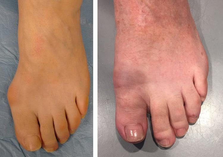 Chirurgia-percutanea-mini-invasiva-alluce-valgo-MICA_dott-Gianluca-Falcone-Roma