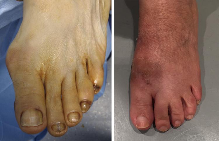 Chirurgia-percutanea-mini-invasiva-alluce-valgo_dott-Gianluca-Falcone-Roma