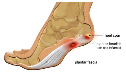 Fascite-plantare_patologie-del-piede_chirurgo-ortopedico-roma