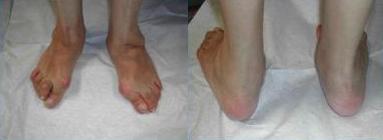 Intervento chirurgico-piede-piatto-chirurgia-piede-e-caviglia-roma