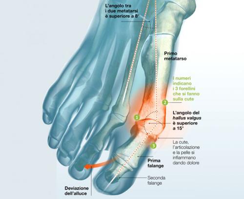 Chirurgia-intervento-alluce-valgo-roma-avezzano-abruzzo-l-aquila-calabria-dott-gianluca-falcone-medico-chirurgo