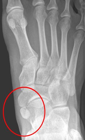 Os-tibiale-esterno-chirurgia-del-piede-roma