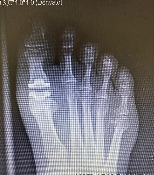 Protesi-di-alluce