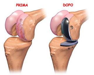Protesi-ginocchio_2_dott-Gianluca-Falcone-chirurgo-ortopedico-Roma