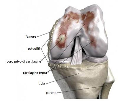 artrosi-ginocchio