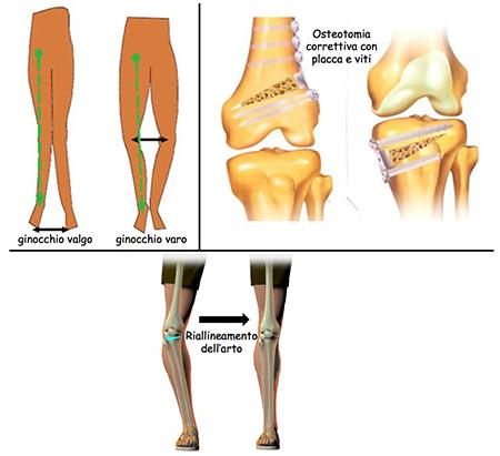 artrosi-del-ginocchio-osteotomia_03_dott-Gianluca-Falcone-Roma