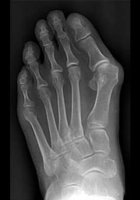 metatarsalgia-piede-intervento-chirurgico_1_dott-Gianluca-Falcone