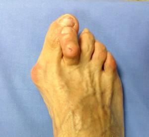 metatarsalgia-chirurgia-piede_2_dott-Gianluca-Falcone