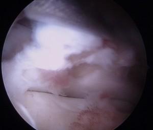 Artroscopia-caviglia-posteriore_dott-Gianluca-Falcone-Roma