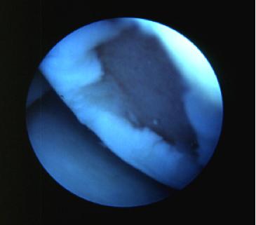 Artroscopia-ginocchio_5_dott-Gianluca-Falcone-Roma