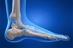 Chirurgia-del-piede-e-della-caviglia-roma-reggio-calabria-abruzzo-dott-gianluca-falcone-medico-chirurgo