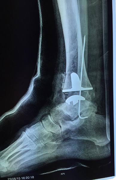 Chirurgia-protesi-di-caviglia