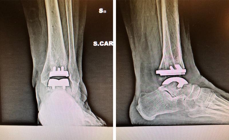 Intervento-chirurgico-protesi-caviglia-XRay
