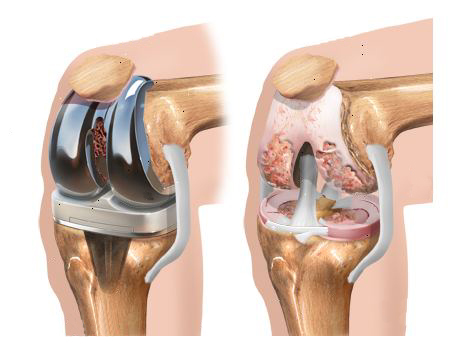 Intervento-chirurgico-protesi-di-ginocchio_4_dott-Gianluca-Falcone-Roma