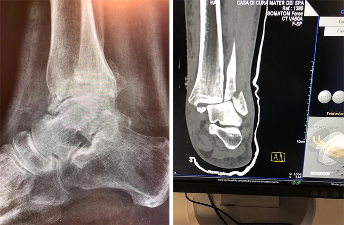 Intervento-protesi-caviglia-2_dott-gianluca-falcone