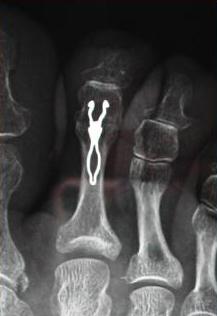 Immagine-post-operatoria_Chirurgia-mininvasiva-del-piede