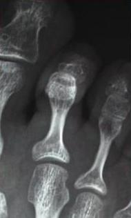 Immagine-pre-peratoria_Chirurgia-mininvasiva-del-piede