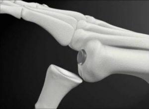 CARTIVA-nuovo-impianto-di-cartilagine-sintetica-per-sostituire-la-superficie-della-cartilagine-danneggiata