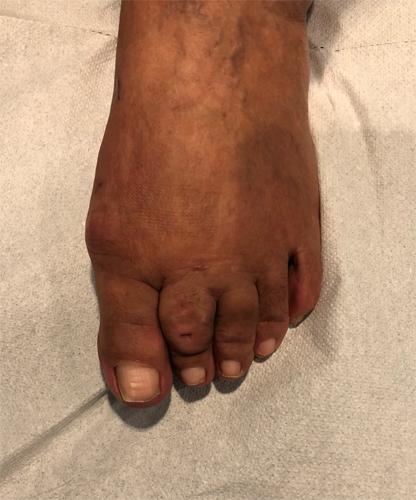 Chirurgia-percutanea-mini-invasiva-alluce-valgo-8_POST_dott-Gianluca-Falcone
