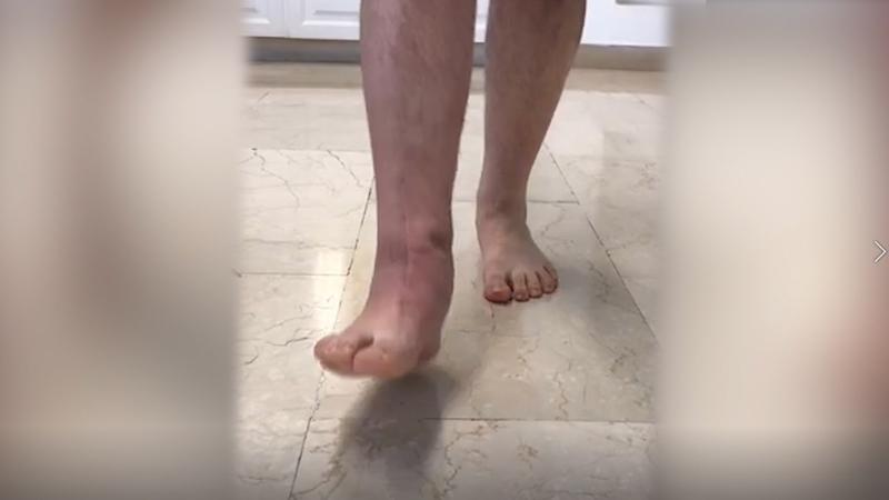 Intervento-chirurgico-protesi-caviglia_ad-1-anno