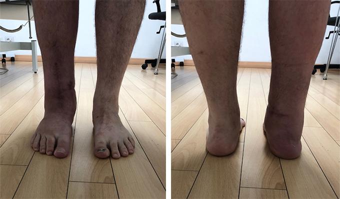 Intervento-protesi-caviglia-dott-gianluca-falcone-roma
