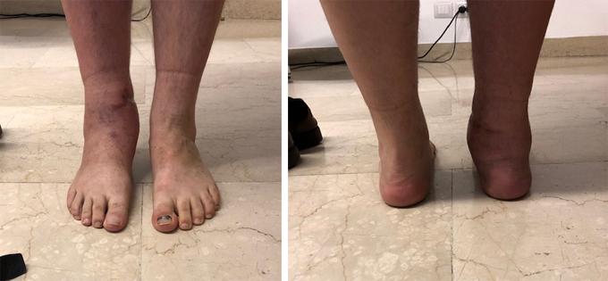 Intervento-protesi-caviglia-3_dott-gianluca-falcone-Roma