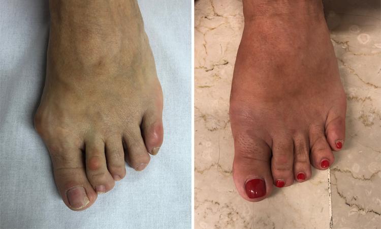 Chirurgia-percutanea-mininvasiva-alluce-valgo-Int.09a-dott-Gianluca-Falcone-Roma