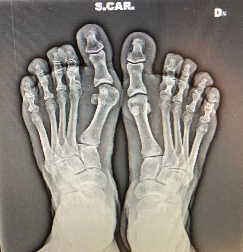 Chirurgia-percutanea-mininvasiva-alluce-valgo_Int-9b-dott-Gianluca-Falcone-Roma