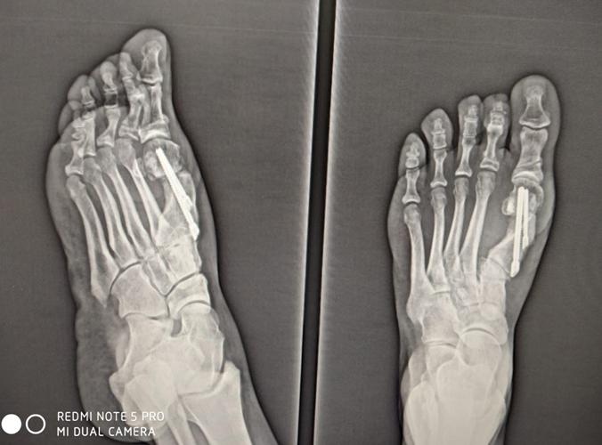 Chirurgia-percutanea-mininvasiva-alluce-valgo_Int-9c-dott-Gianluca-Falcone-Roma
