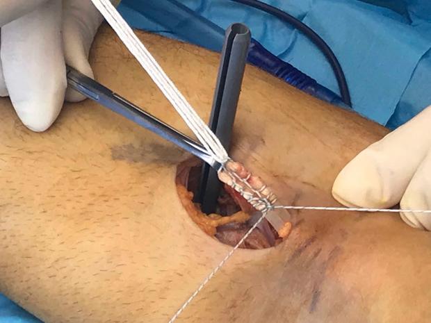 chirurgia-del-gomito-intervento-bicipite-img1_dott-gianluca-falcone-roma