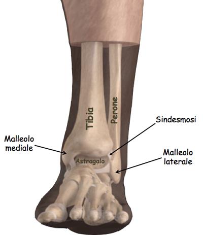 Frattura-caviglia